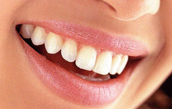 Çekici ve güzel gülümseme sırları