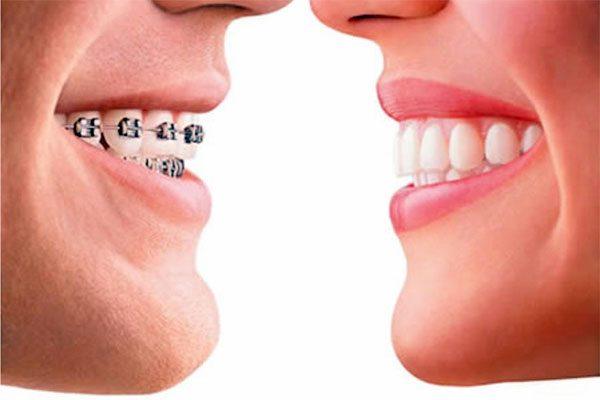 Eğri ve ayrık dişlerin tedavisi